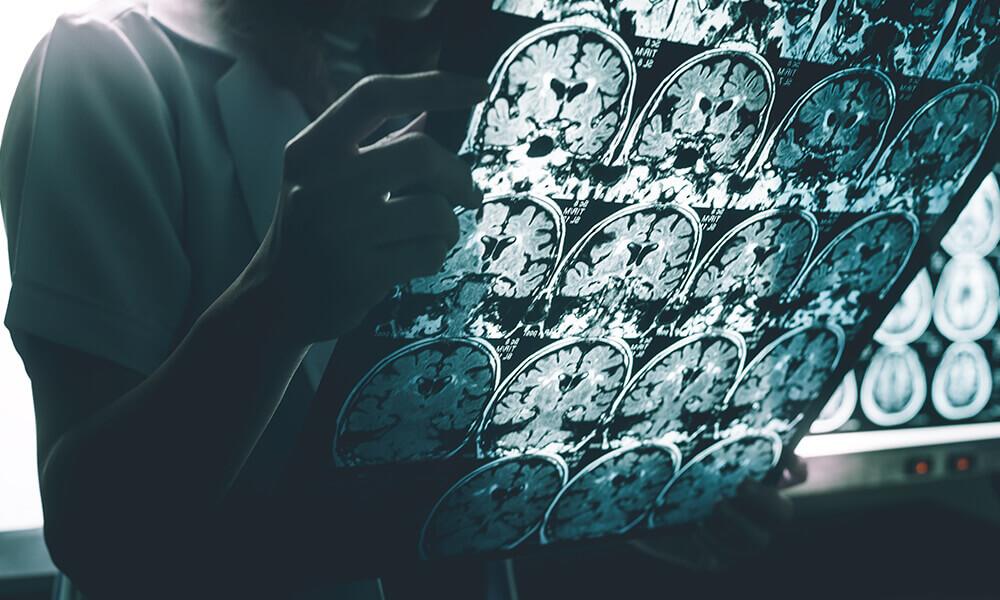 doctor examining MRI