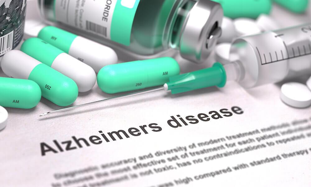 alzheimers disease